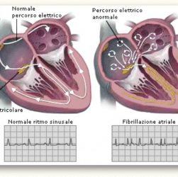 tachicardia atriale sintomi e cura