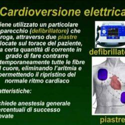 cardioversione elettrica cos è e quali sono i rischi