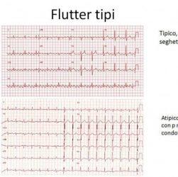 flutter atriale cause sintomi e terapia
